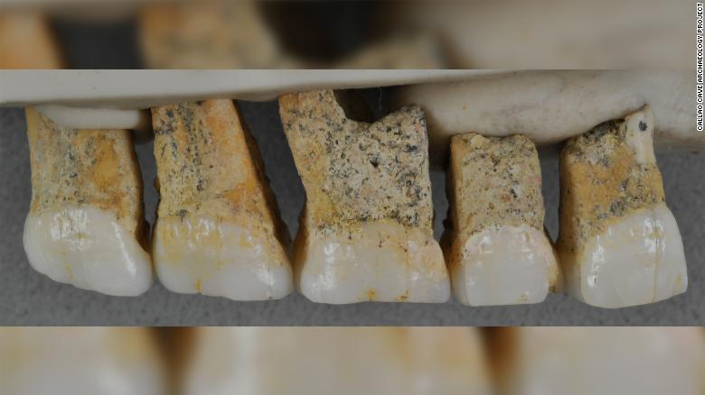 ფილიპინებში ადამიანის ამ დრომდე უცნობი სახეობის ძვლები აღმოაჩინეს